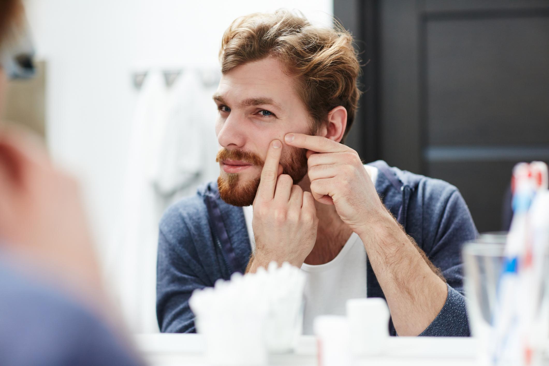 A acne é uma preocupação de muitas pessoas, por conta de afetar a aparência. Ela pode aparecer em homens e mulheres, em idades diferentes.
