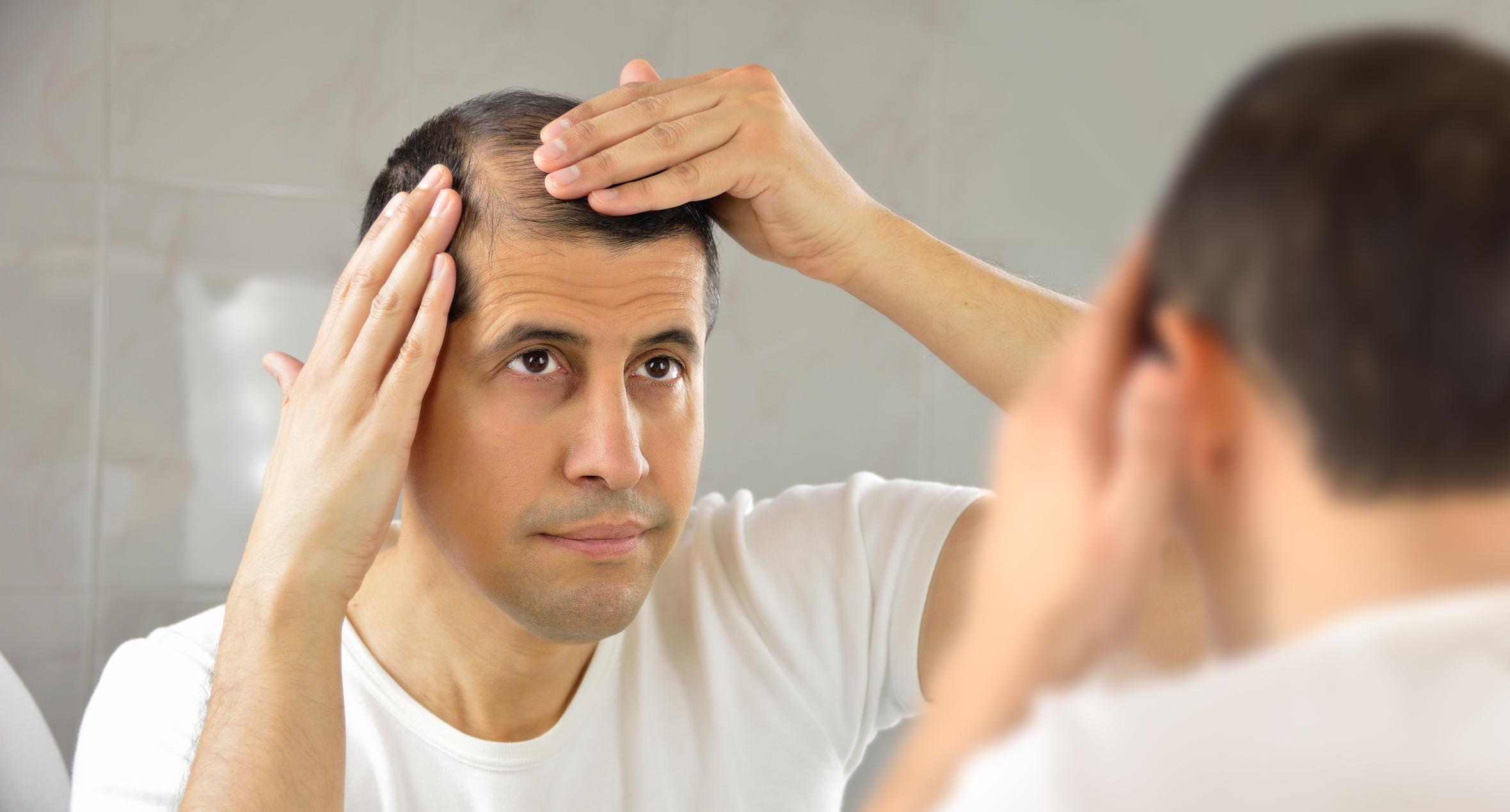 Muitas pessoas sofrem com a queda dos cabelos e isso pode estar ligado ao estresse, segundo o especialista em transplante capilar, Alan Wells.