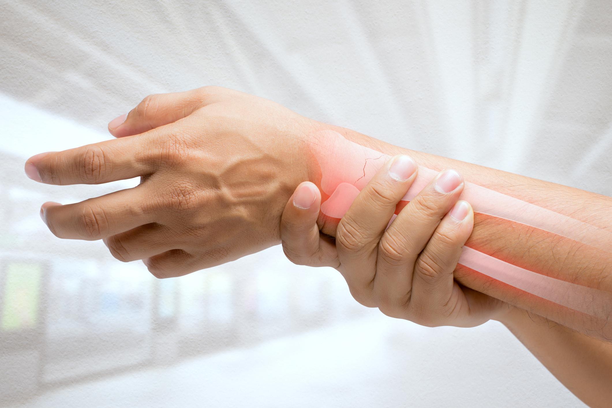 De acordo com a Associação Brasileira de Avaliação Óssea e Osteometabolismo (Abrasso), cerca de 10 milhões de brasileiros sofrem com a osteoporose.